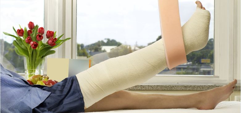 Person with a broken leg in a cast